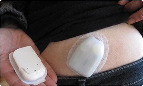 Цель анализа крови на сахар